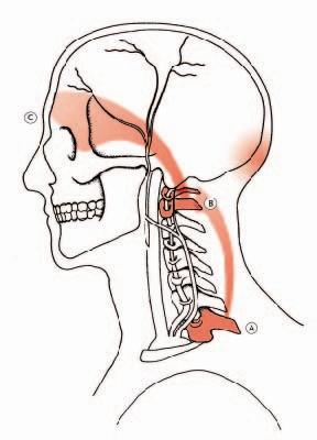 Esercizi per trattamento di una curvatura di una spina dorsale a bambini